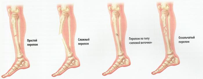 bone fracture types