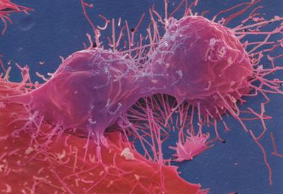 Клетка раковой опухоли фото