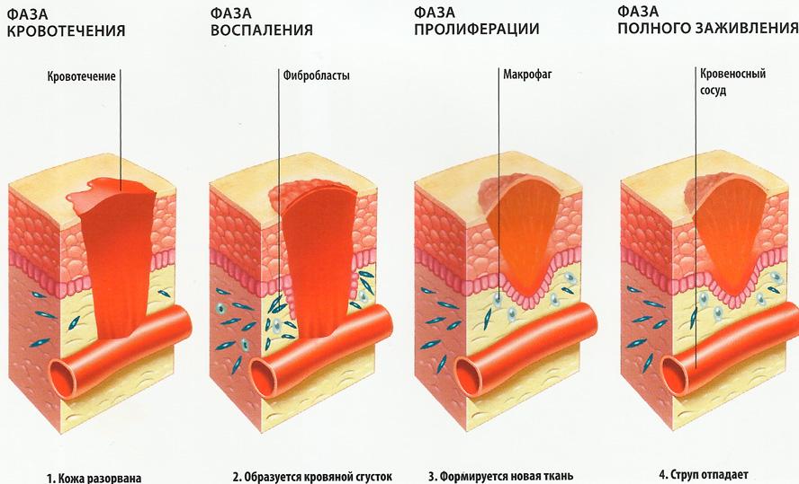 Схема заживления ран