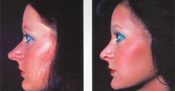 Ринопластика носа фото
