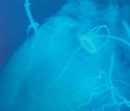 клапан рентген