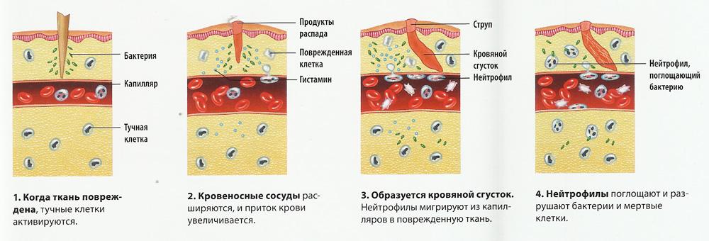воспаление в ране