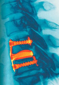 спина рентгенограмма