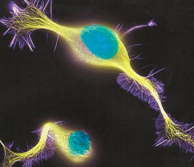 нервные клетки фото