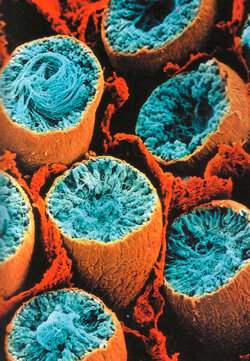 семенные канальцы фото