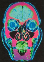 строение черепа фото