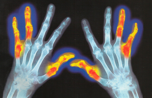 рентгенограмма рук