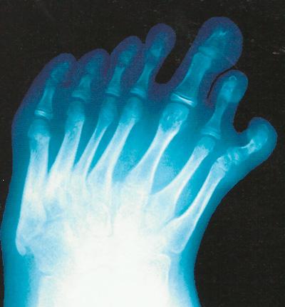 Семь пальцев фото