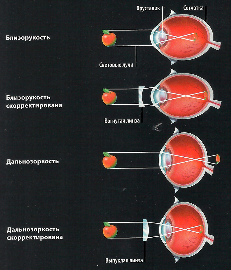 нарушение зрения схема